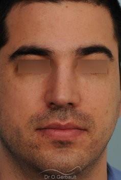 Nez large chez un homme vue de face apres
