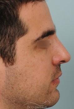 Nez large chez un homme vue de profil apres