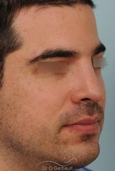 Nez large chez un homme vue de quart apres