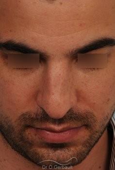 Nez large chez un homme vue de face avant