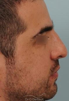 Nez large chez un homme vue de profil avant
