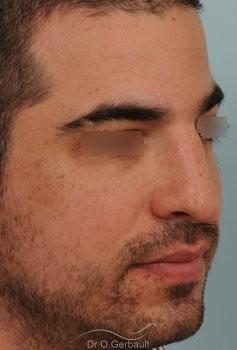 Nez large chez un homme vue de quart avant