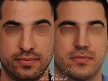 Nez large chez un homme vue de face duo