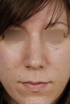 Nez large et fort sur peau épaisse vue de face apres