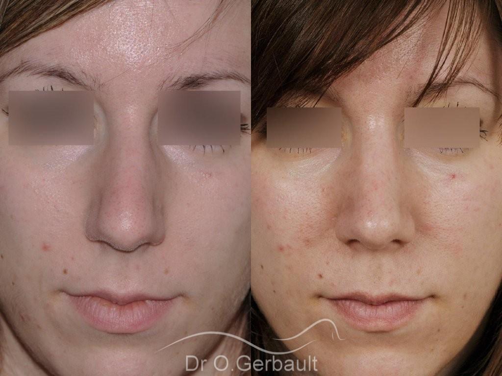 Nez large et fort sur peau épaisse vue de face avant-apres