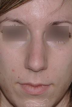 Nez large et fort sur peau épaisse vue de face avant