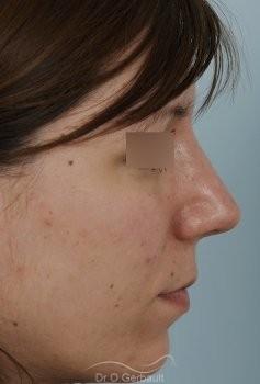 Nez large et fort sur peau épaisse vue de profil apres