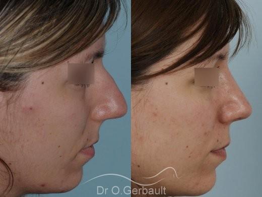 Nez large et fort sur peau épaisse vue de profil avant-apres