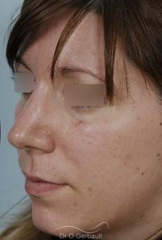 Nez large et fort sur peau épaisse vue de quart apres