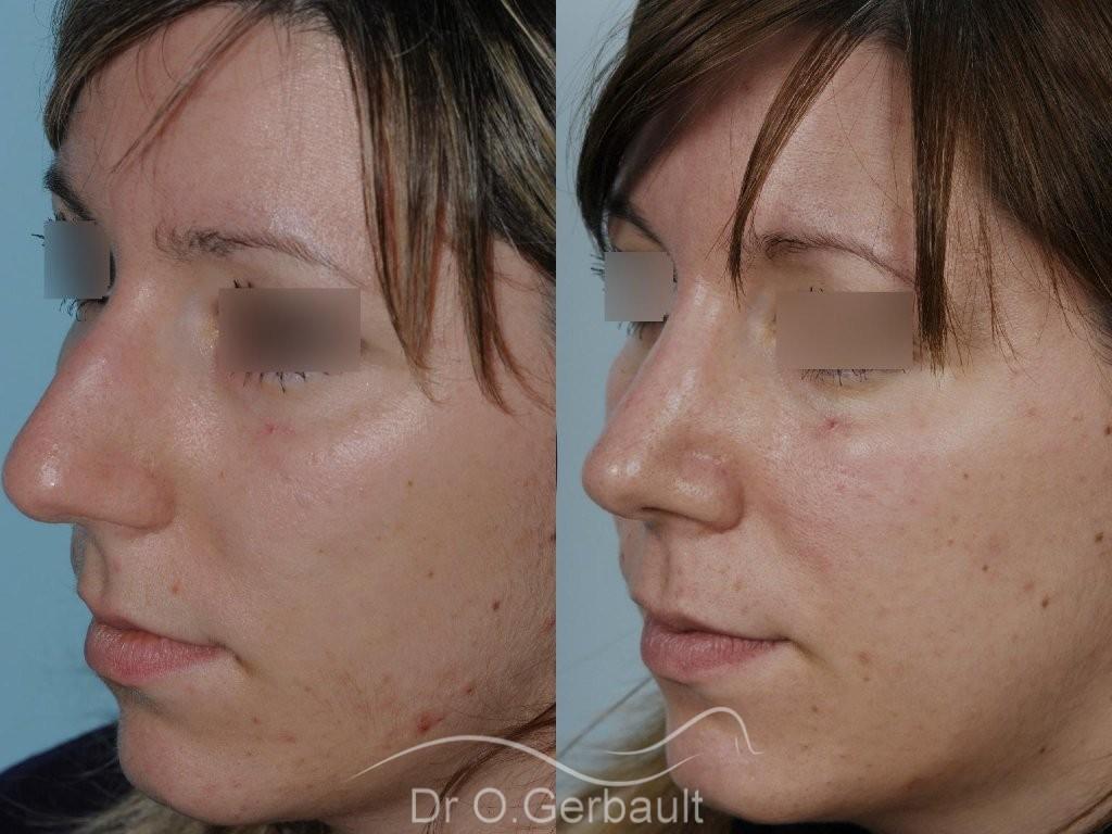 Nez large et fort sur peau épaisse vue de quart avant-apres
