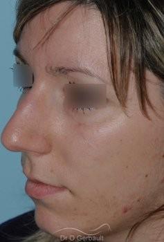 Nez large et fort sur peau épaisse vue de quart avant