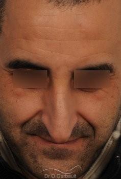 Nez long avec bosse et pointe tombante vue de face avant