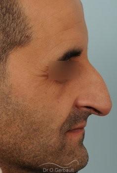 Nez long avec bosse et pointe tombante vue de profil avant
