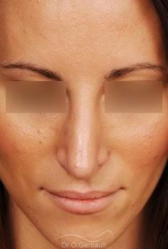 Nez long et Pointe de nez tombante vue de face apres