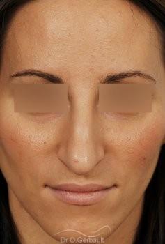 Nez long et Pointe de nez tombante vue de face avant