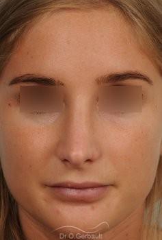 Nez long, pointe large et columelle pendante vue de face apres