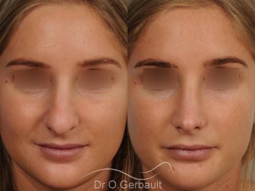 Nez long, pointe large et columelle pendante vue de face avant-apres