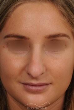 Nez long, pointe large et columelle pendante vue de face avant