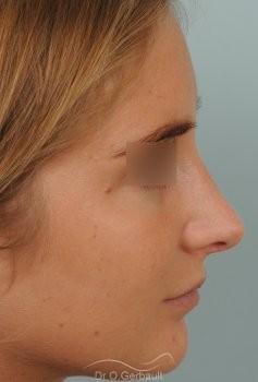Nez long, pointe large et columelle pendante vue de profil apres