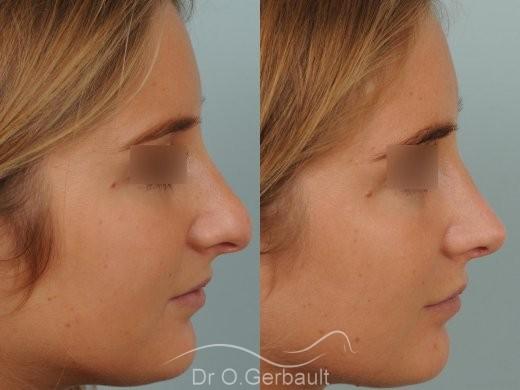 Nez long, pointe large et columelle pendante vue de profil avant-apres