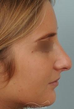 Nez long, pointe large et columelle pendante vue de profil avant