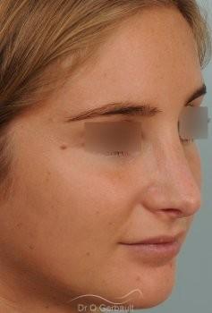 Nez long, pointe large et columelle pendante vue de quart apres