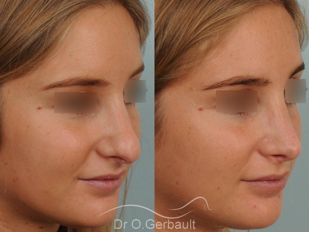 Nez long, pointe large et columelle pendante vue de quart avant-apres