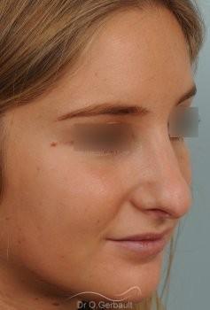 Nez long, pointe large et columelle pendante vue de quart avant