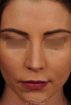 Nez masculin et pointe tombante vue de face apres