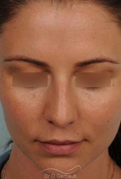 Nez masculin et pointe tombante vue de face avant