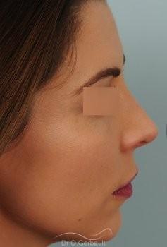 Nez masculin et pointe tombante vue de profil apres