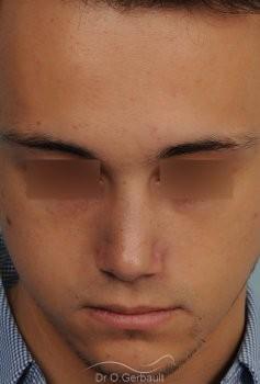Nez tordu avec déviation de cloison vue de face apres