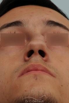 Nez tordu avec déviation de cloison vue de face avant