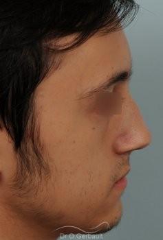 Nez tordu avec déviation de cloison vue de profil avant