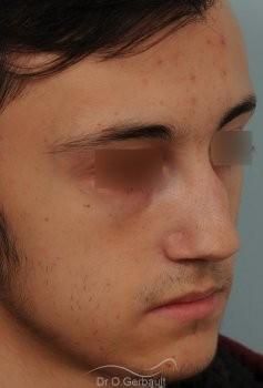 Nez tordu avec déviation de cloison vue de quart avant