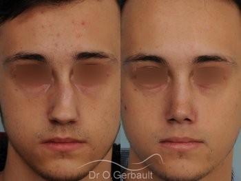 Nez tordu avec déviation de cloison vue de face duo