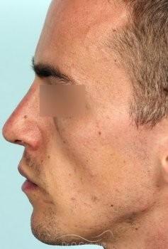 Nez trop court, massif, avec bosse vue de profil apres