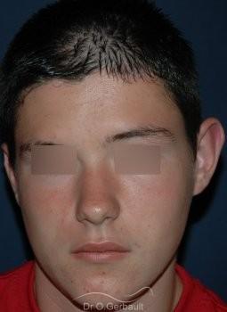 Otoplastie enfant vue de face avant