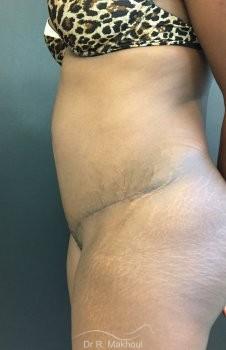 Plastie abdominale et cure de diastasis vue de profil apres