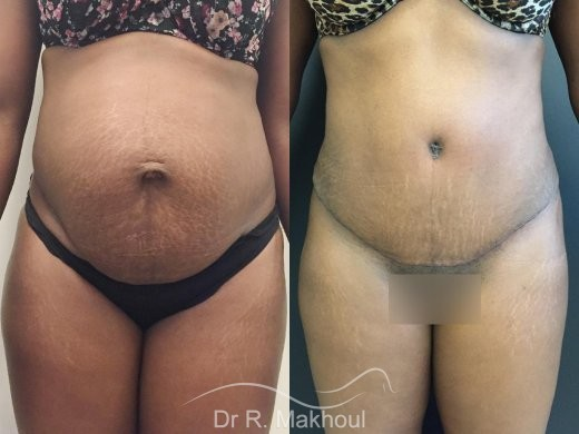 Plastie abdominale et cure de diastasis vue de face duo