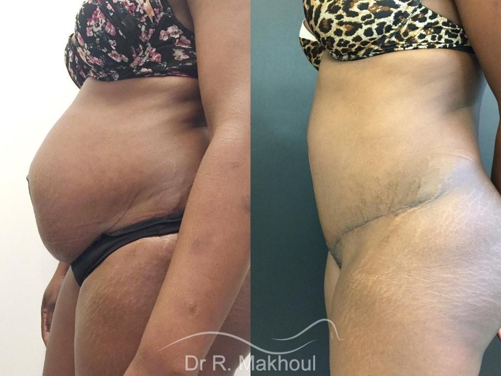 Plastie abdominale et cure de diastasis vue de profil duo