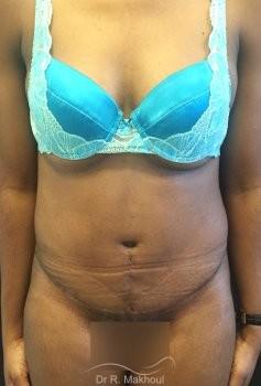 Plastie abdominale et cure de diastasis vue de face apres