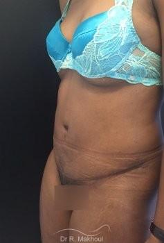 Plastie abdominale et cure de diastasis vue de quart apres