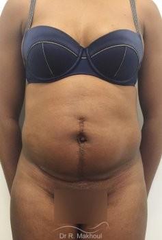 Plastie abdominale et cure de diastasis vue de face avant