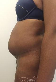 Plastie abdominale et cure de diastasis vue de profil avant