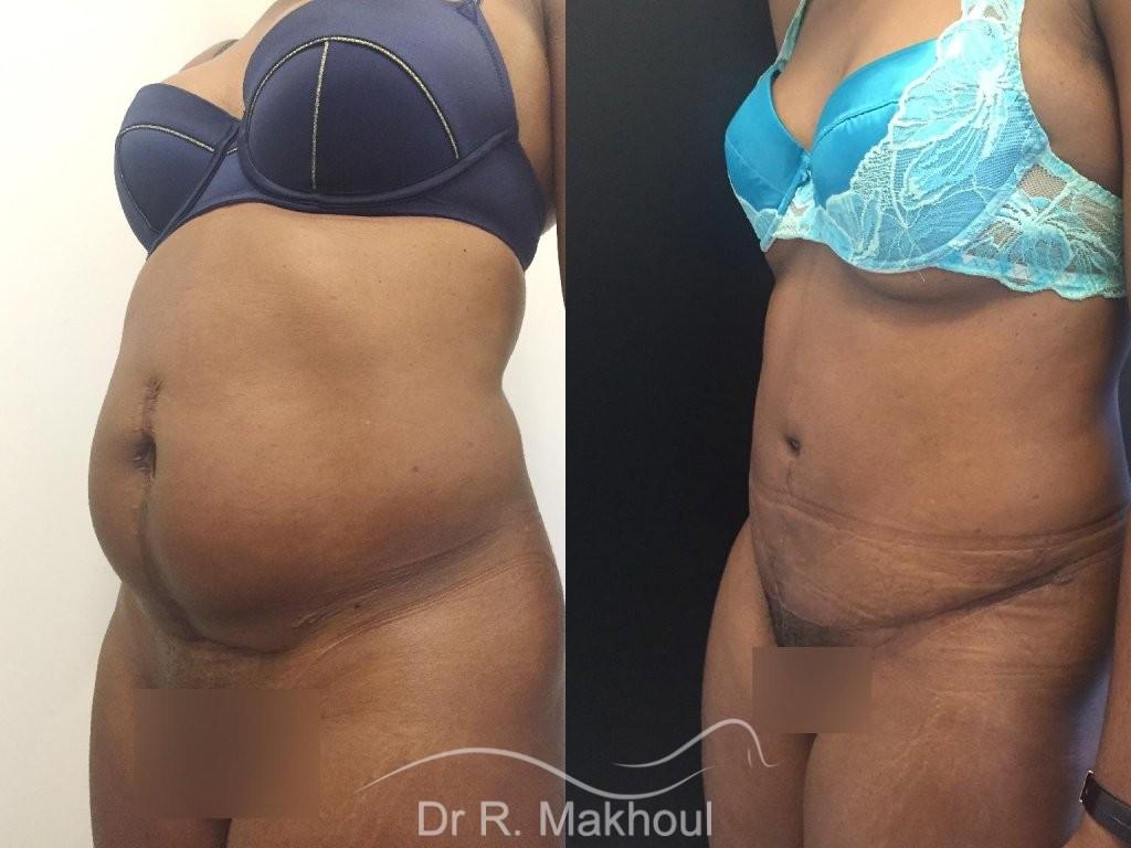 Plastie abdominale et cure de diastasis vue de quart duo