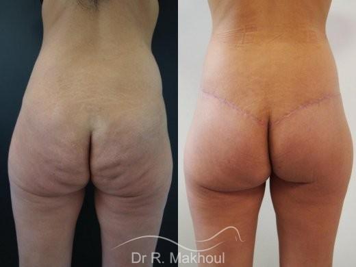 Plastie abdominale, lipofilling et lift fesses vue de dos duo