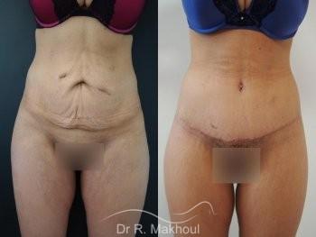 Plastie abdominale, lipofilling et lift fesses vue de face duo