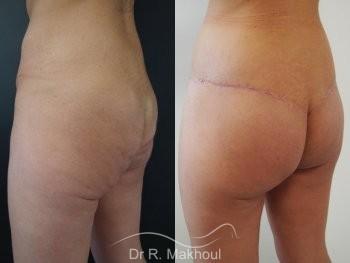 Plastie abdominale, lipofilling et lift fesses vue de quart duo