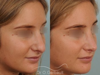 Pointe de nez large et ronde vue de quart avant-apres